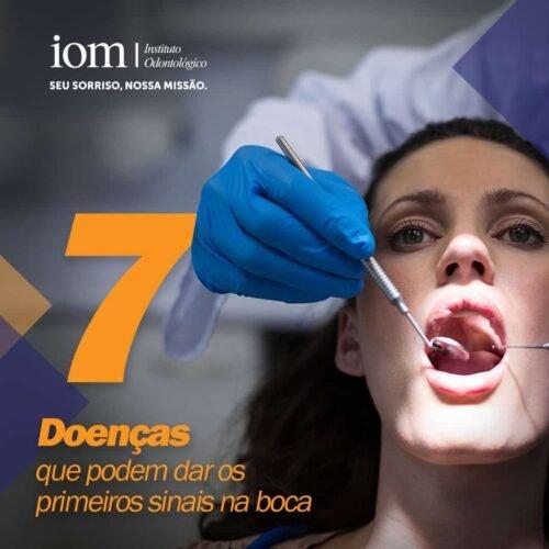 7 Doenças que podem dar os primeiros sinais na boca